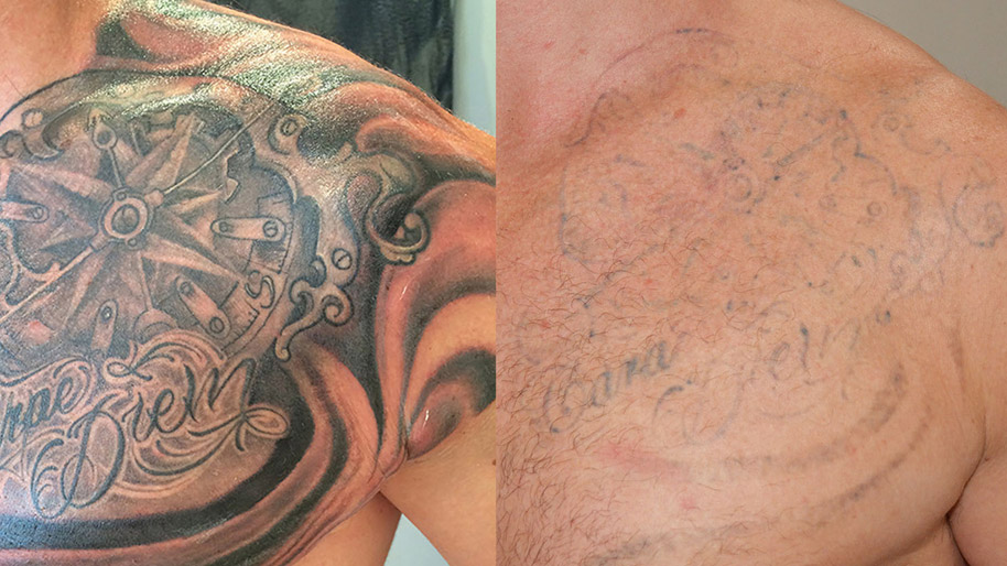 1 RATED Laser Tattoo Removal Toronto | Easily Remove Unwanted ...